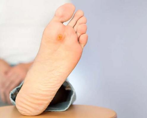 درمان انواع زخم پا