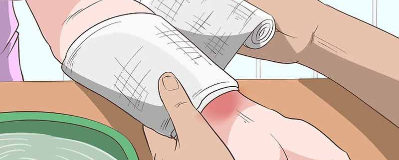 درمان زخم بسته