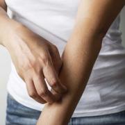 درمان زخم اگزما