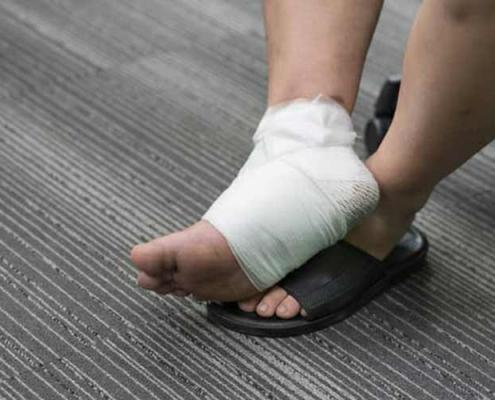 درمان زخم عمیق پا
