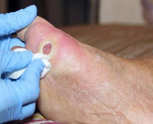 درمان زخم تاول