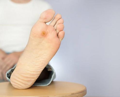 درمان زخم قارچی پا